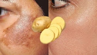 How To Use Potato To Treat Pigmentation, Dark Spots, Acne Scars Easily At Home | Home Remedies