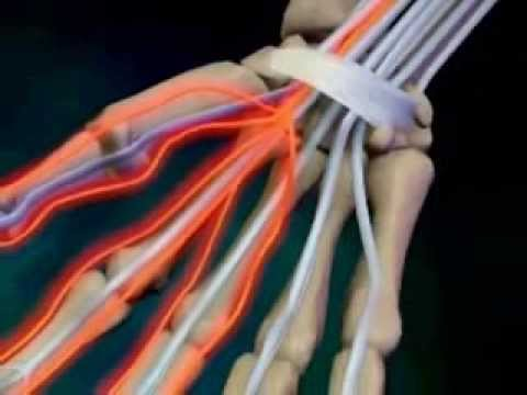 Early Symptoms And Warning Signs Of Carpal Tunnel Syndrome
