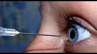Как вытащить стружку из глаза