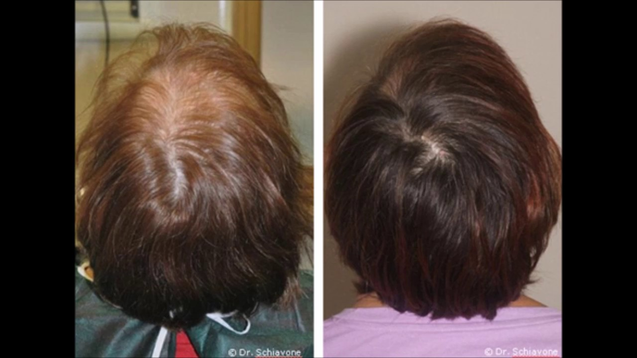 How To Stop Hair Loss And Regrow It The Natural W Yaz