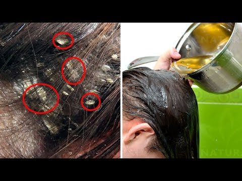 3 Home Remedies To Get Rid Of Dandruff Naturally