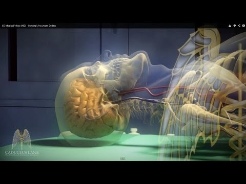 3D Medical Video (HD) - Cerebral Aneurysm Coiling