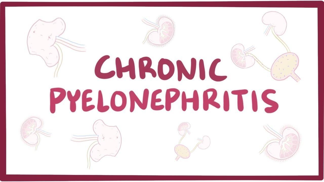 pyelonephritis acuta kezelése)