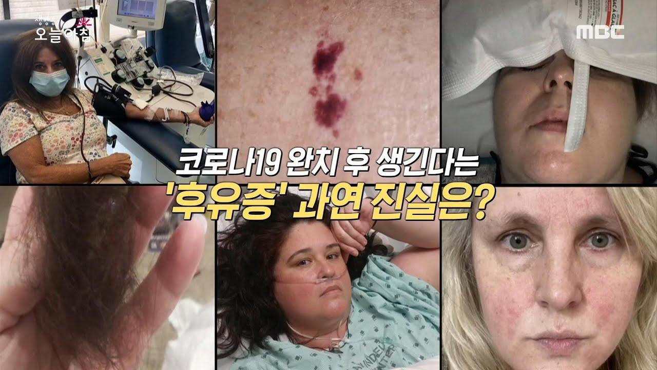 Download [생방송 오늘 아침] 코로나19 완치 후 생긴다는 '후유증', 과연 진실은?! 20200825