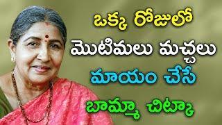 ఒక్క రోజులో మొటిమలు మచ్చలు మాయం చేసే బామ్మా చిట్కా  |Home Remedy for Pimples at home| Bamma Vaidyam