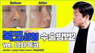 남자복코성형 전후 궁금하신분?? | 남자복코수술 사례 …