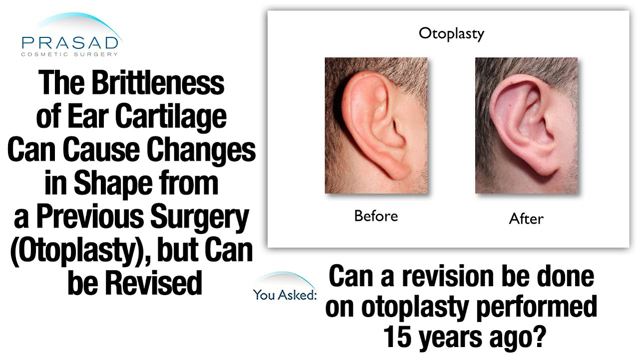 How Brittle Ear Cartilage Can Change Shape after Previous Surgery ...