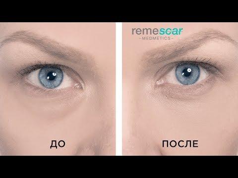 Эффективные домашние маски помогающие устранить темные круги под глазами