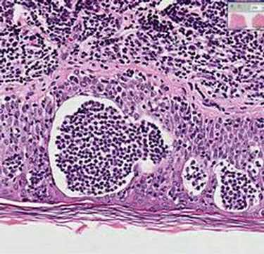 Histopathology Skin--Mycosis fungoides