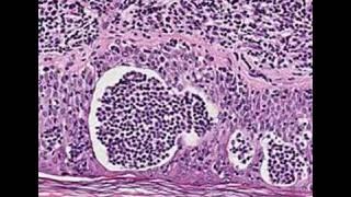 Histopathology Skin--Mycosis fungoides