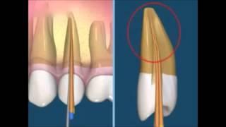 Как лечить гранулематозный периодонтит. Эндодонтия. Терапевтическая стоматология .(В этом видео мы вам расскажем и покажем на модели как правильно диагностировать периодонтит и затем его..., 2015-06-09T20:03:22.000Z)