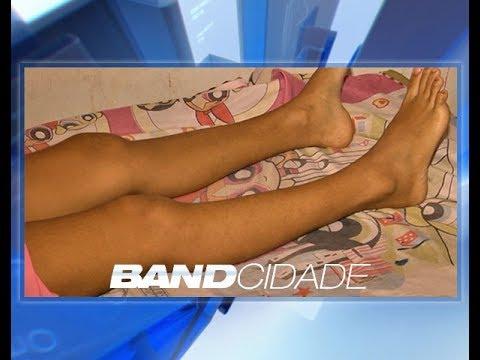 Mãe acusa negligência médica após filha perder movimentos da perna