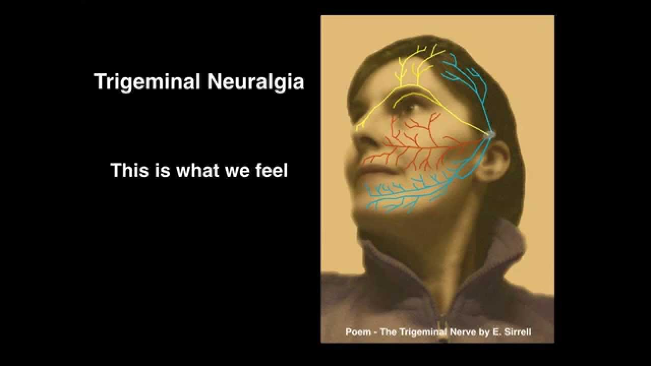 Image result for trigeminal neuralgia you tube