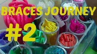 Braces On June 2015