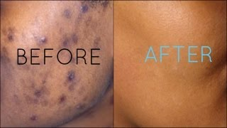 Dark Spots Fade Away | Remove Dark Spots Extract White Heads