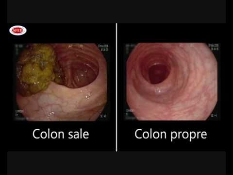 Image Result For Colon Cancer Constipation
