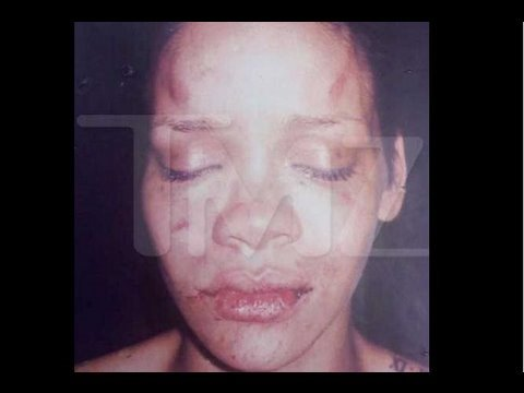 Did Rihanna Give Chris Brown Herpes