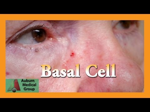 Basal Cell Carcinoma Punch Biopsy | Auburn Medical Group