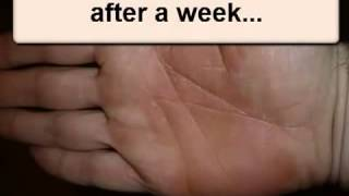 Vitamin Deficiency Psoriasis Thumbnail