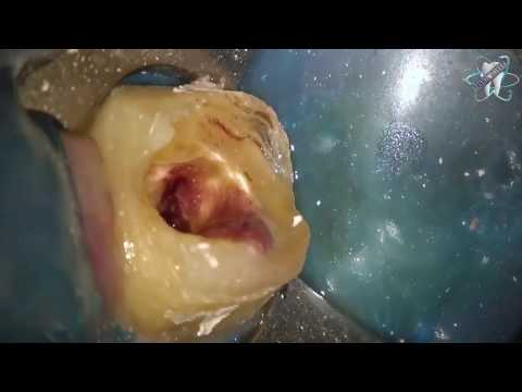 Root Canal Demonstration on tooth 18