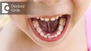 Does Tongue Tie cause speech defects? - Dr. Namrata Pai