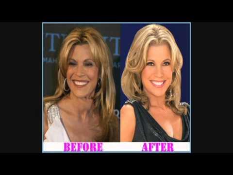 vanna white plastic surgery