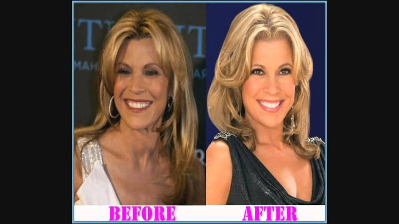 Watch Vanna White Plastic Surgery – Secret Behind Her Youthful Look video
