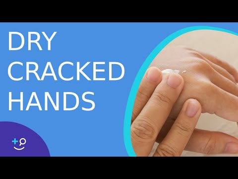 Dry Cracked Hands - Daily Do's Of Dermatology