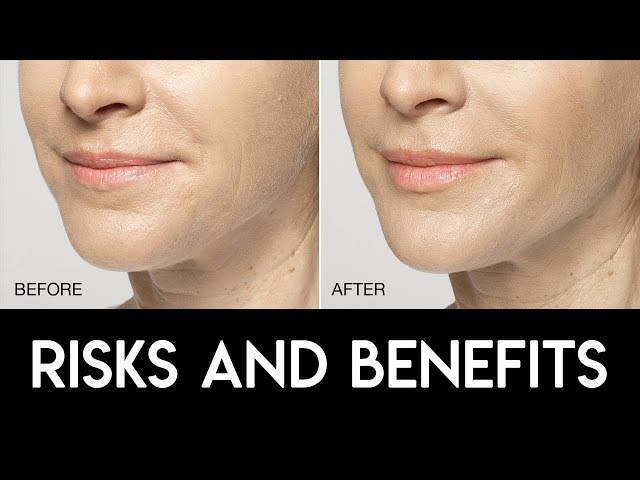 Lip Filler Risks & Benefits