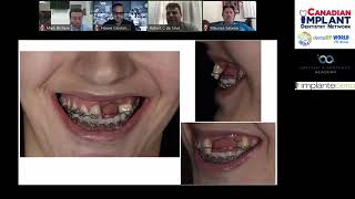 3D Bone Augmentation Technique Webinar Series | Canadian Implant Dentistry Network