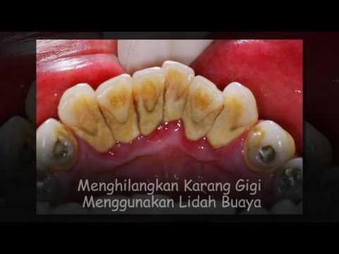 Cara Menghilangkan Karang Gigi Dengan Soda Kue Youtube