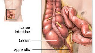 What side is your appendix on? Symptoms, Conditions, and Treatments
