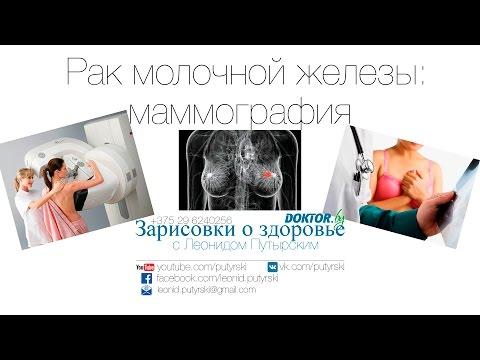 Мастопатия молочной железы: что это такое, признаки и