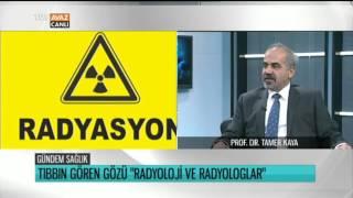 Radyoloji ve X Işınlarının Zararları - Prof. Dr. Tamer Kaya Anlatıyor - Gündem Sağlık - TRT Avaz