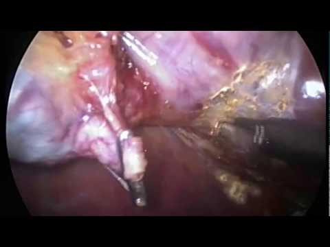 Cirurgia de pedra na vesícula por video laparoscopia - Colecistectomia