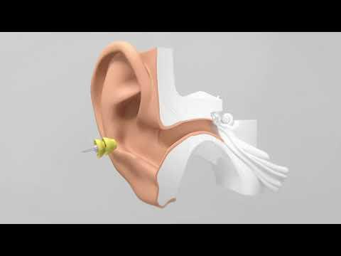 Lyric dans l'oreille