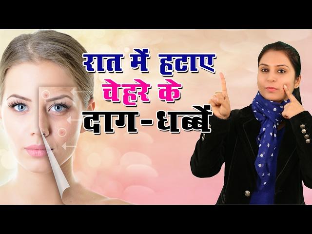 ??? ??? ???? ????? ?? ???? ???, ????? Daag Dhabe Hatane Ke Upay | Remove Dark Spots On Face, Acne