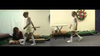 Before & After: Excessive Plantarflexion - Toe Walking | DAFO Tami2