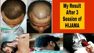 Case Study HIJAMA    My Result After 3 Sessions of Wet Cupping HIJAMA Therapy to Grow Hair