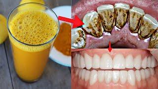2 मिनट में गंदे पीले दांतो को मोती की तरह चमका देगा ये कमाल का नुस्खा // Teeth Whitening at Home