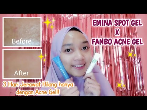 hanya-3-hari-jerawat-dan-bruntusan-hilang!!-|-emina-spot-gel-x-fanbo-acne-gel
