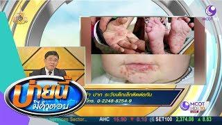 โรคมือ-เท้า-ปาก-ระวังเด็กเล็กติดต่อกัน-27-พ-ค-62-บ่ายนี้มีคำตอบ-9-mcot-hd