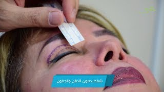 نحت الذقن والتخلص من ترهلات الجفون والنتائج مفاجأة - دكتور جمال جمعة