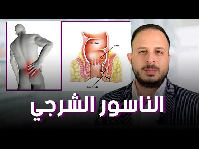 الناسور الشرجي علاج مختلف وفعال بدون جراحة Youtube