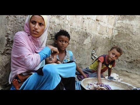 ازمة انسانية كبيرة يعيشها اليمن في ظل التدهور الامني والصحي  - نشر قبل 1 ساعة