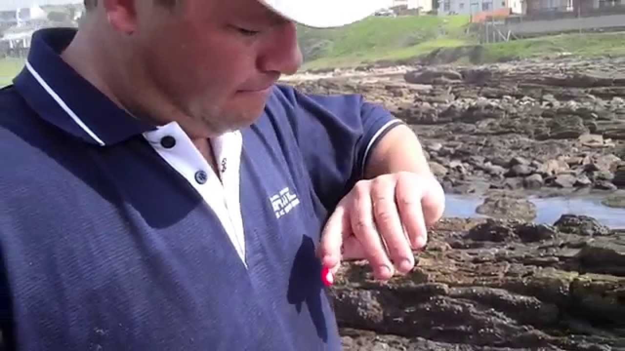 How to remove a fishing hook from your finger youtube for Removing fish hook