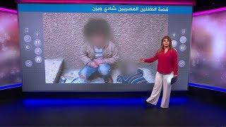 قصة الطفلين يزن وشادي التي هزت مشاعر المصريين