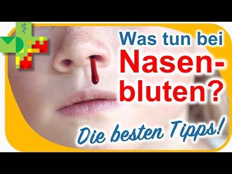 Nasenbluten - Was Tun? Die Besten Tipps