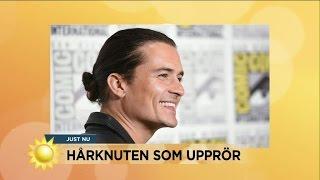 """Doktorn: """"Man bun ger inte håravfall"""" - Nyhetsmorgon (TV4)"""