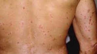 Remède naturel Psoriasis